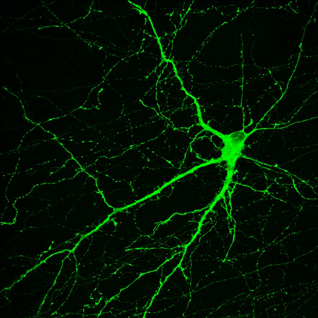 This neuron, created in the Su-Chun Zhang lab at the University of Wisconsin-Madison, makes dopamine, a neurotransmitter involved in normal movement. The cell originated in an induced pluripotent stem cell, which derive from adult tissues. Similar neurons survived and integrated normally after transplant into monkey brains -- as a proof of principle that personalized medicine may one day treat Parkinson's disease. Photo credit: 2010 image, by Yan Liu and Su-Chun Zhang, Waisman Center, University of Wisconsin-Madison